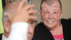 Husband Of Critically Injured Wife Shoots Himself